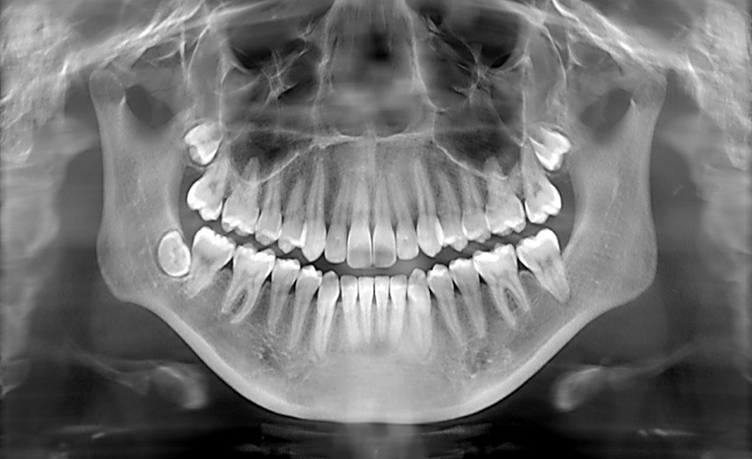 dental xrays port washington ny