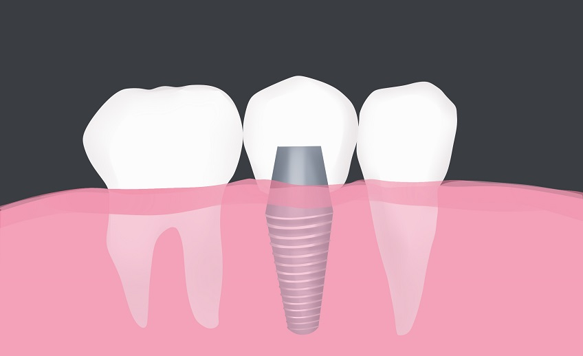 dental implant restoration port washington ny