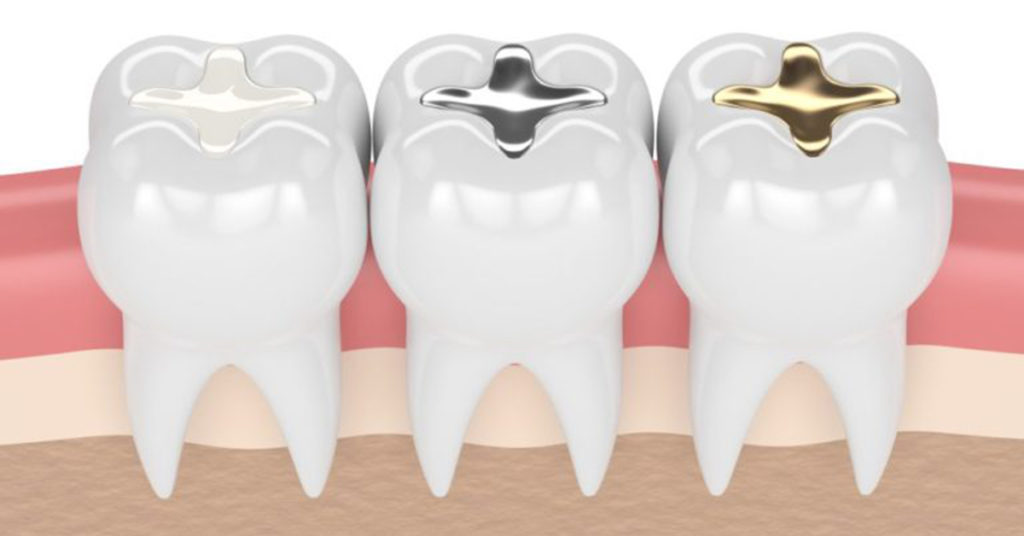 types of dental fillings - dentist port washington ny
