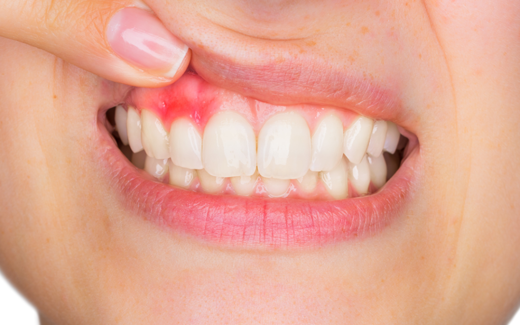 dental cleanings help prevent gingivitis