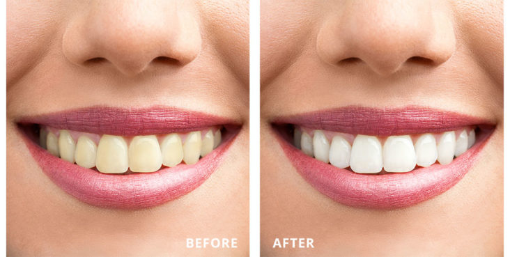 smile makeover 3v dental associates port washington ny