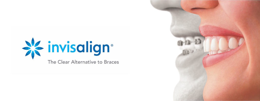 invisalign port washington long island ny