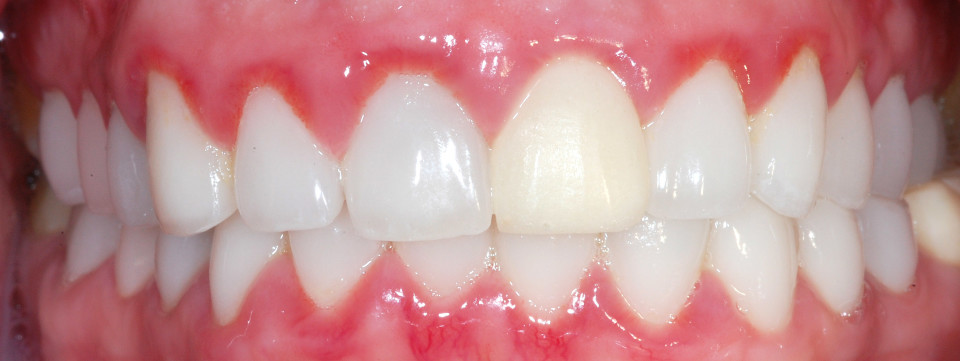 gingivitis-Treatments