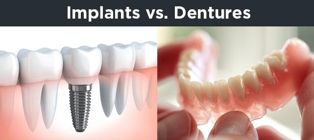 implants-vs-dentures