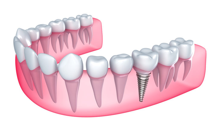what are dental implants dentist port washington ny