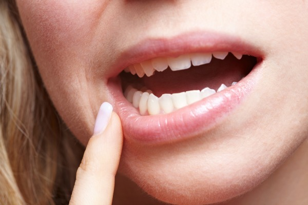 fix chipped or cracked tooth