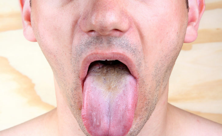 what does it mean if my tongue is color