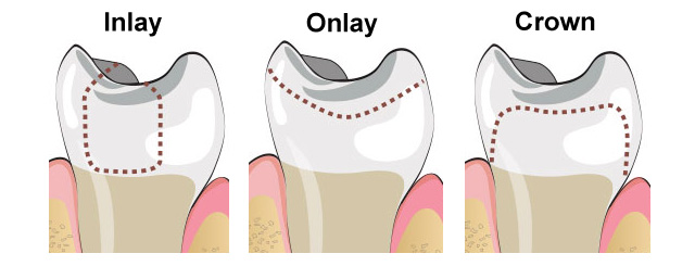 dental inlays and onlays port washington ny