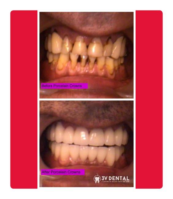 full mouth reconstruction port washington ny (1)