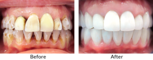 full mouth reconstruction port washington ny long island