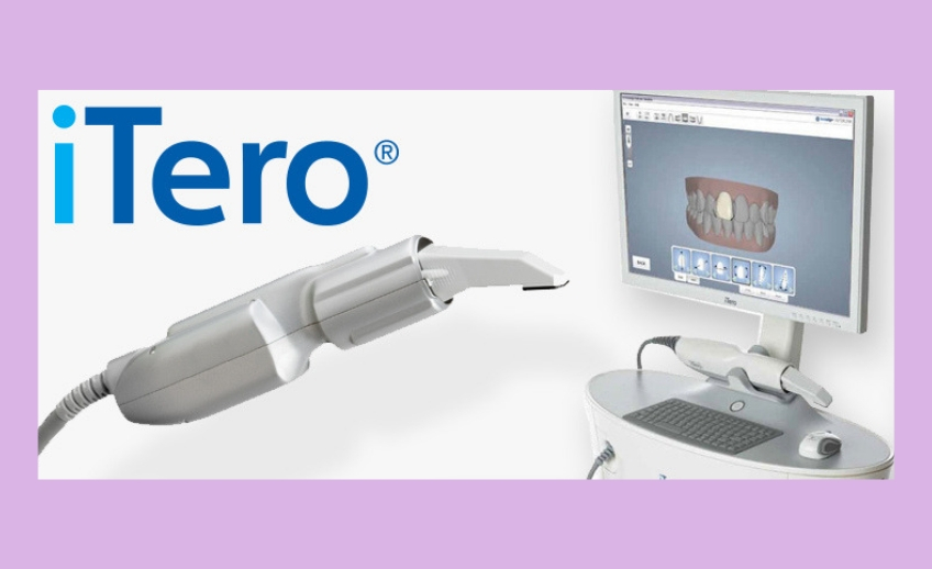 itero digital impressions port washington dental