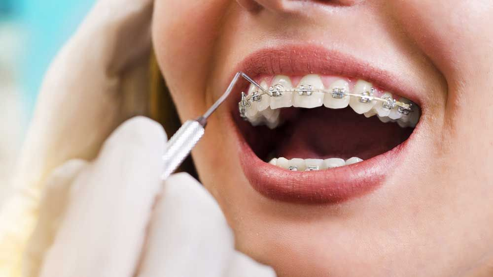 traditional wire braces