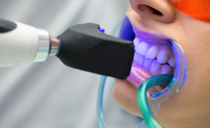 laser teeth whitening procedure